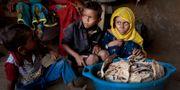 Barn framför mögligt bröd i Jemen. Hani Mohammed / TT NYHETSBYRÅN/ NTB Scanpix