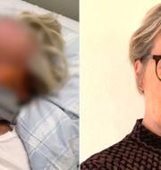 Chris Marschalls mamma misshandlades svårt i sitt hem i Limhamn. Privat